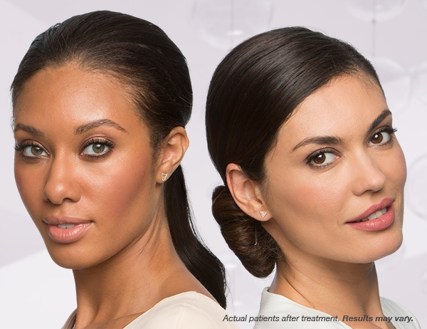 *Pictures from Botox Cosmetics website - for reference only