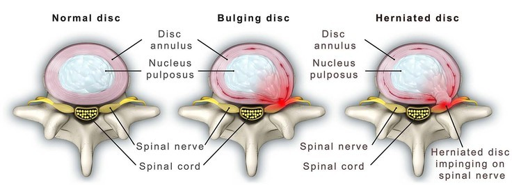 Although rare, disc herniation can occur in the thoracic spine. Here, the outer annulus ruptures allowing the disc to bulge out. This can compress/irritate a nearby spinal nerve, which can lead to referred pain or sensation changes (pins & needles, numbness). This can cause T4 syndrome when it occurs in the upper thoracic spine. Image credit: Mayfield Brain and Spine, 2016 (2).