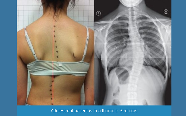 In scoliosis the spine develops a lateral curvature to one side, leading to a twisted and asymmetrical posture in severe cases. Image Credit: Denneroll Spinal Orthotics, 2017 (4).