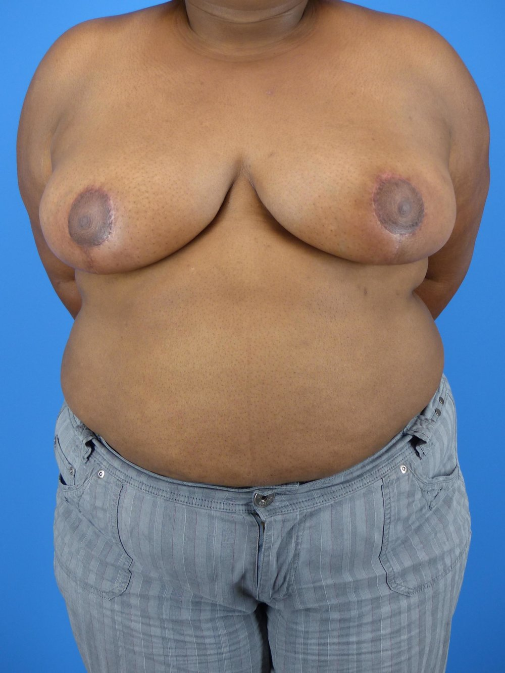 breast-reduction-before-and-after.jpg