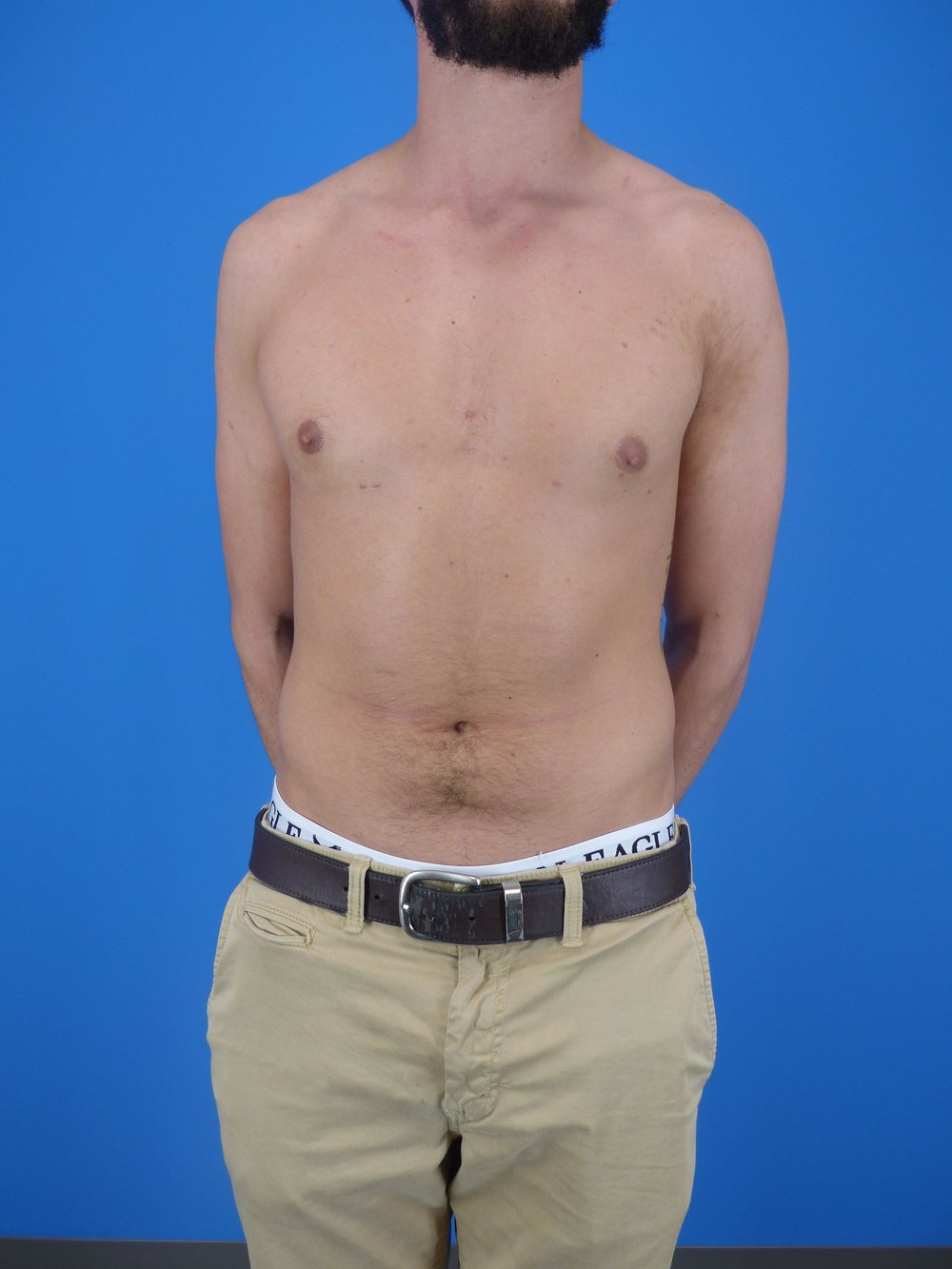gynecomastia-before-and-after.jpg
