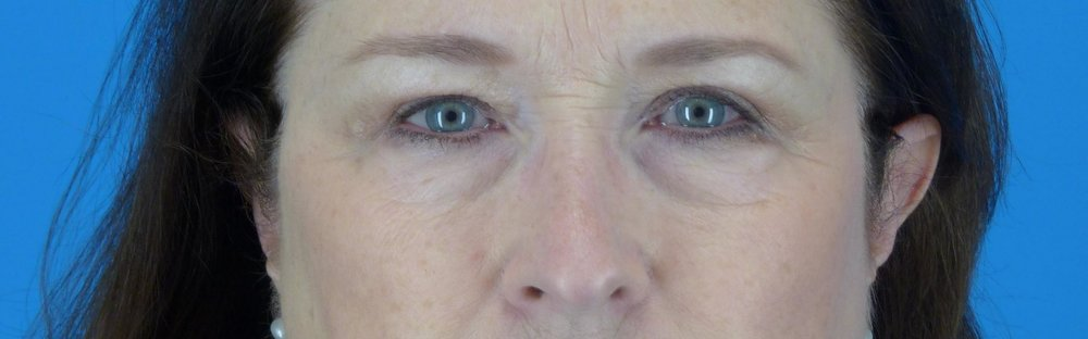 eyelid-surgery-before-and-after.jpg