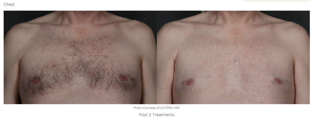 laser-hair-removal-jonesboro.jpg