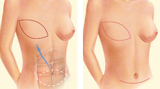 A TRAM flap uses donor muscle, fat and skin from a woman's lower abdomen to reconstruct the breast.