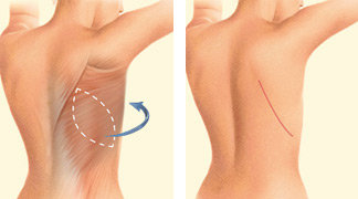 A latissimus dorsi flap uses muscle, fat and skin from the back tunneled to the mastectomy site and remains attached to its donor site, leaving blood supply intact.