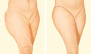 outer-thigh-lift-incision.jpg