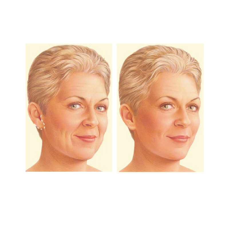 facelift-surgery-limited-incision.jpg