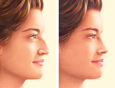 rhinoplasty-nose-job-jonesboro-ar.jpg