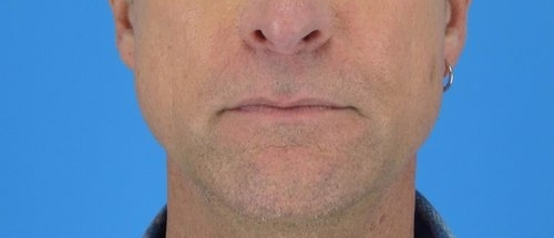 lip-lift-before-and-after-3.jpg