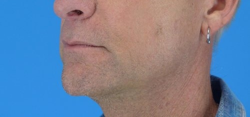 lip-lift-before-and-after-4.jpg