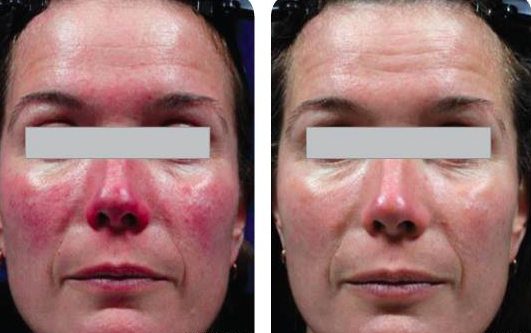 Results after 2 treatments of laser photorejuventation.