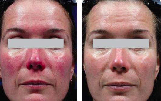 Results after 2 treatments of laser photorejuventation.