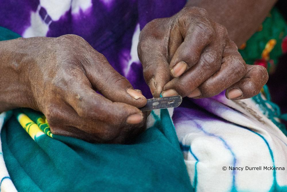 FGM -