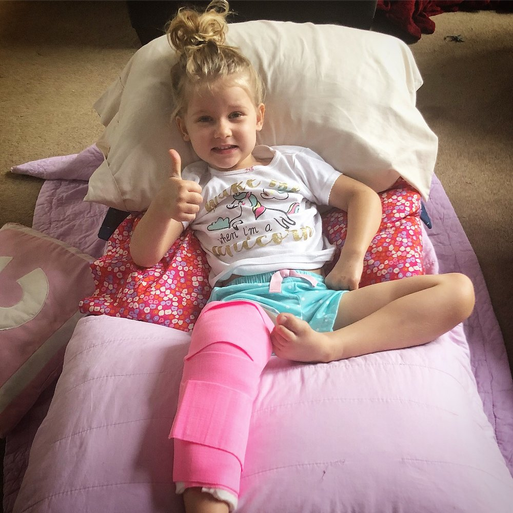 A Parents Survival Guide To Having A Kid In A Full Leg Cast