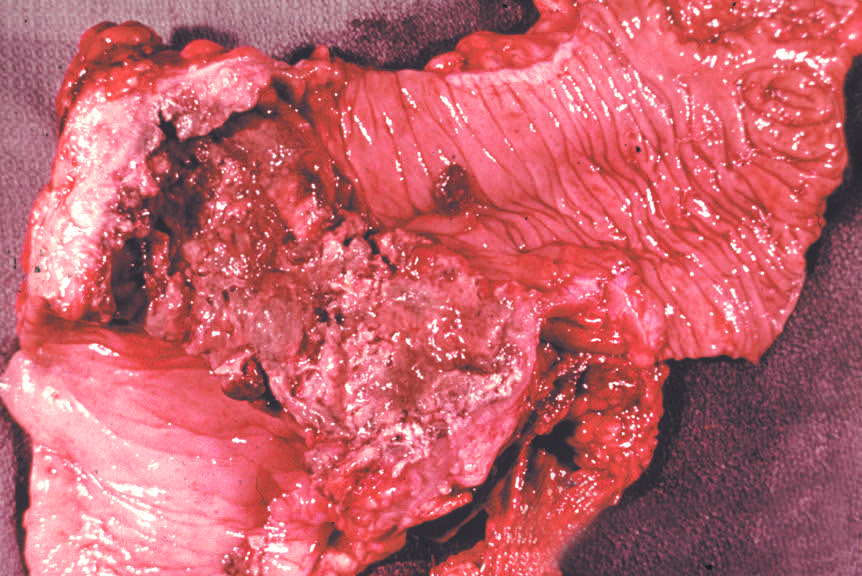 Flask-shaped ulcers due to  Entamoeba histolytica . Fatal case.