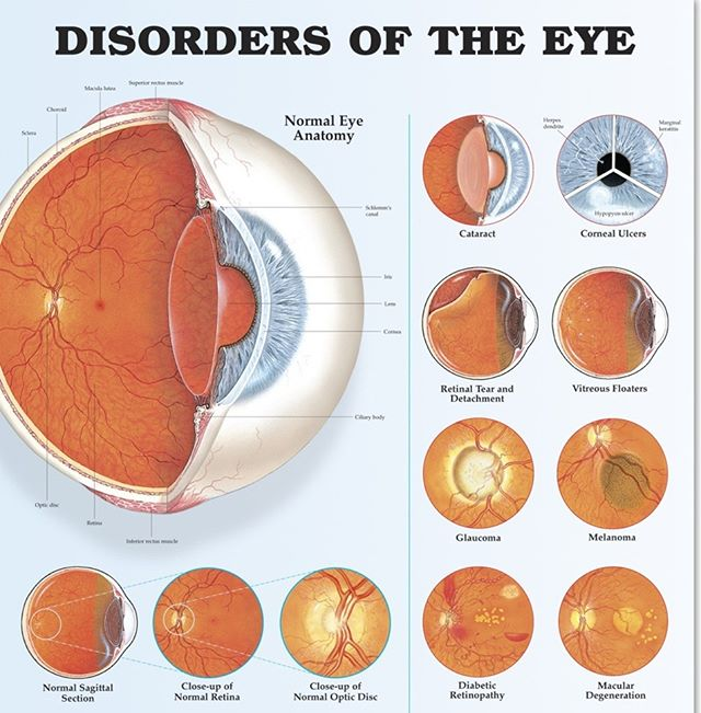 #eyes #eye #diabetes #cataract