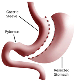 gastric sleeve operation