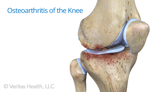 osteoarthritis-knee.png