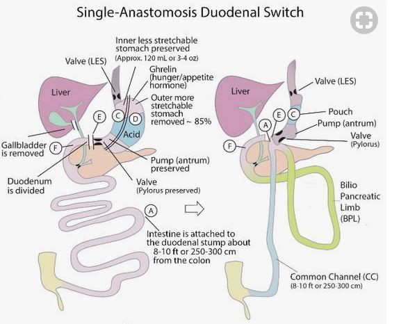 Single_Anastomosis_Duodenal_Switch.JPG