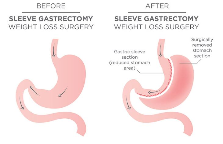 Sleeve Gastrectomy.JPG