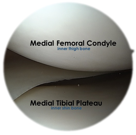 Knee - Medial Compartment