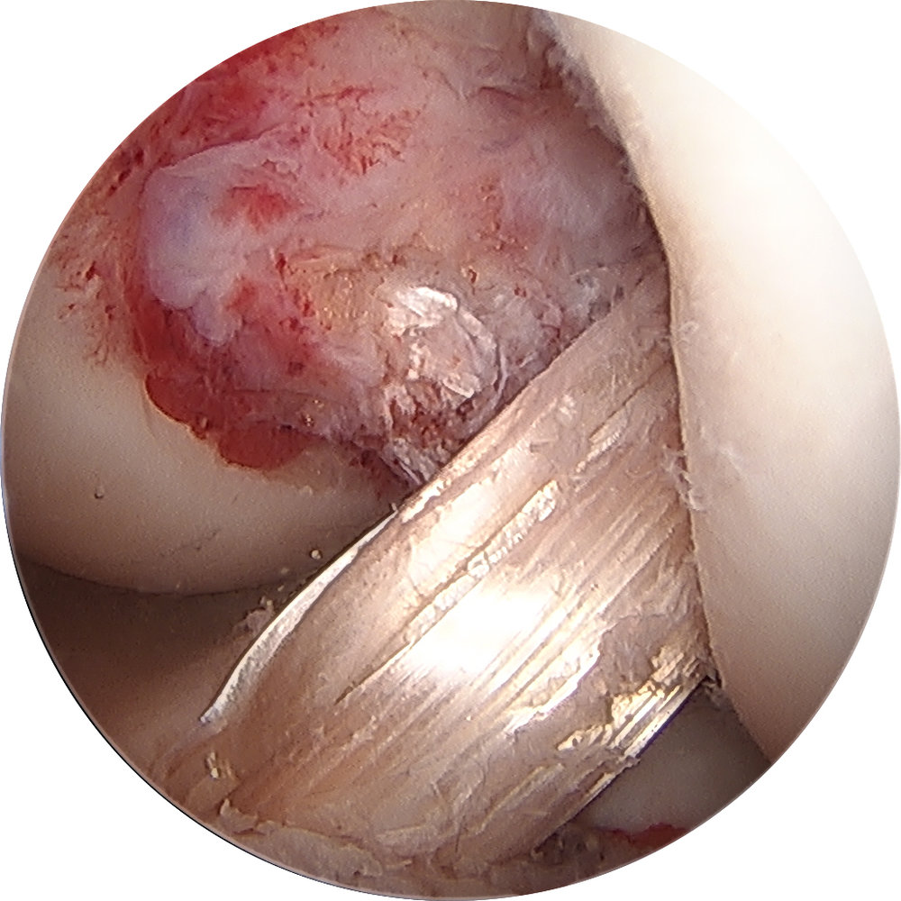 Left ACL Reconstruction with Hamstring Autograft