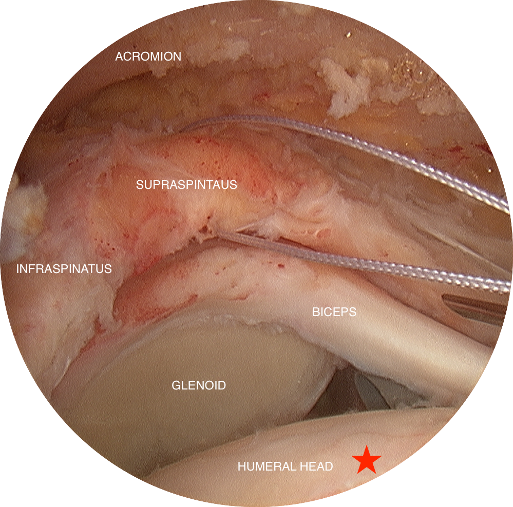 "Before - This is considered a ""massive"" rotator cuff tear, where the supraspinatus and infraspinatus tendons have retracted back to the equator of the glenoid. In this photo, the supraspintus tendon should be attached on the greater tuberosity of the humeral head (well-beyond the red star)."