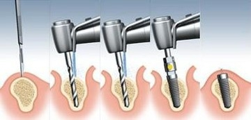 The implant process occurs in phases.
