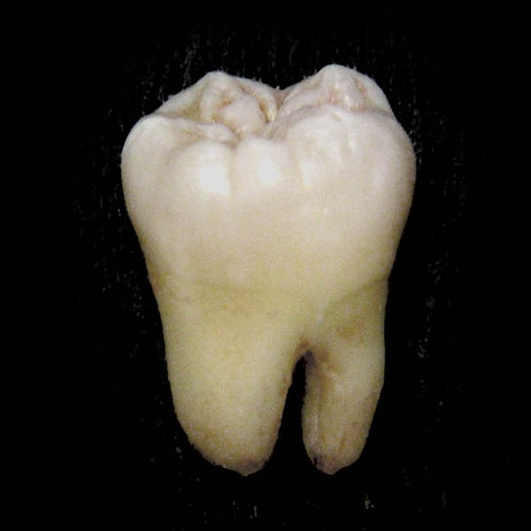 While many dental conditions aren't specifically genetic, the gene called PAX9 is responsible for the development (or lack of) wisdom teeth.