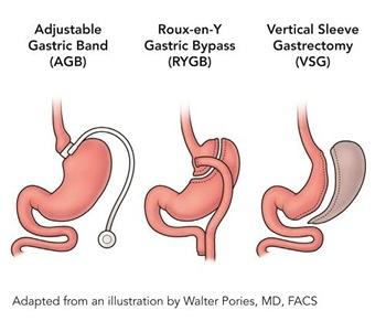 Bariatric surgery.jpg