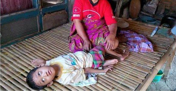 1542175bocah-polio-gizi-buruk-bekasi780x390-e1477382383721.jpg