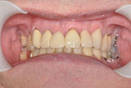 After: Dental Implant & Crown Placed