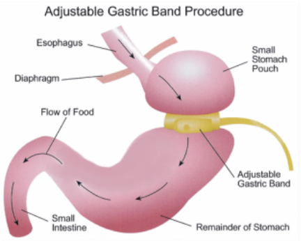 The Virtual Gastric Band: Sustainable results without the pain, risk or cost of a surgical solution.