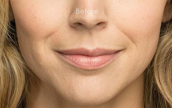 Belotero Julie-before.jpg