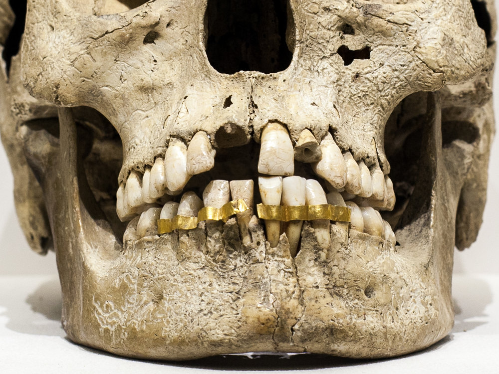 Review of Marshall and Turfa,  The Etruscans and the History of Dentistry: The Golden Smile Through the Ages  (2017)