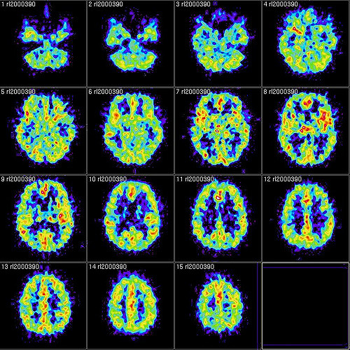 The Neuroscience Department — CATALYST