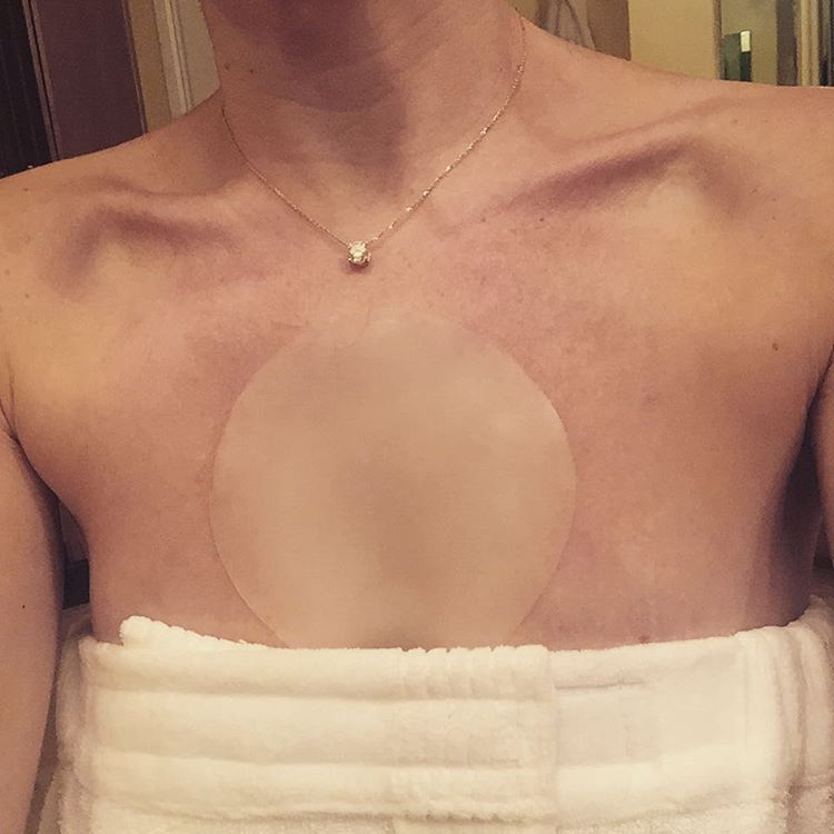 @siobeauty_ testing in progress. #decollage #antiaging #wrinkles #chest #beauty #blogger