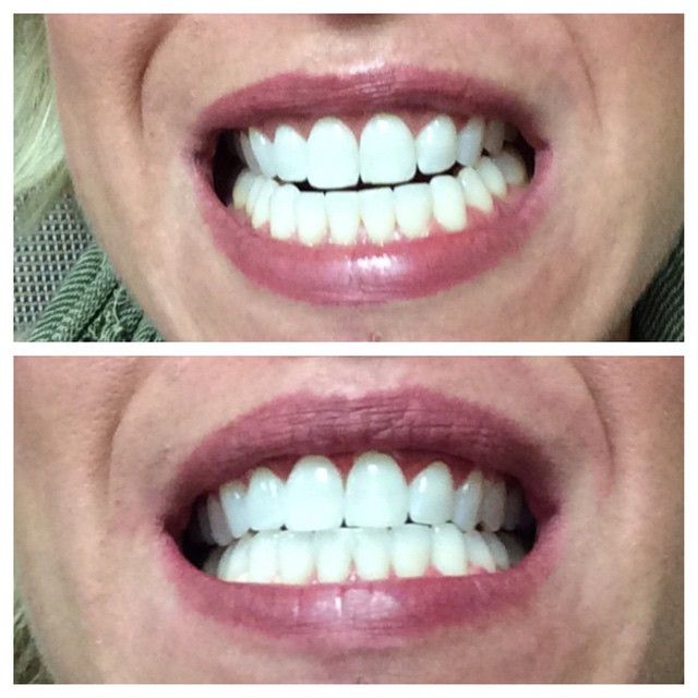 #before and #after today's #teeth #whitening. Apparently #smile dysmorphic disorder is a thing. #Ross #friends #beauty