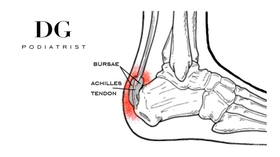 Heel Pain: Heel Bursitis —