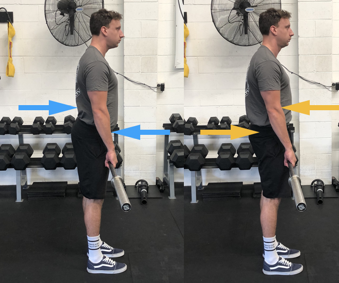 Relative stiffness of lumbar erectors is greater then the anterior core and glutes.
