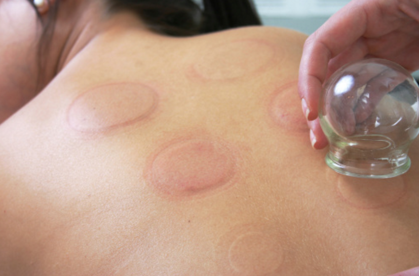 Cupping Treatment