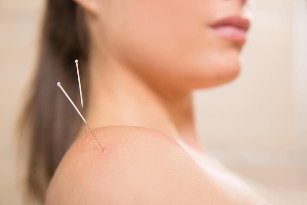acupuncture-300x200.jpg