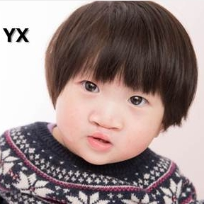 ZHAO YX   Medical Condition:  Cleft Lip & Palate