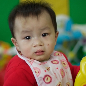 SUN CH   Medical Condition:  Cleft Lip & Palate