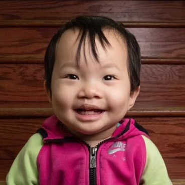 GAO FT   Medical condition: cleft lip and palate