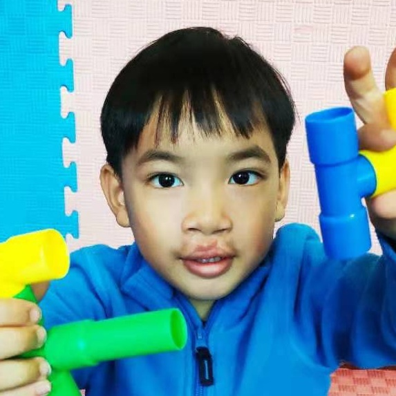 LOU SY    Medical Condition:  Hearing impairment and cleft lip and palate