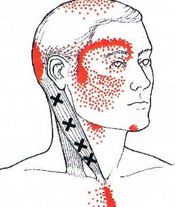 Image: Travell & Simmons - Myofascial Pain and Dysfunction