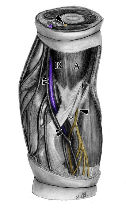 Tricipital supernumerary head of the biceps brachii