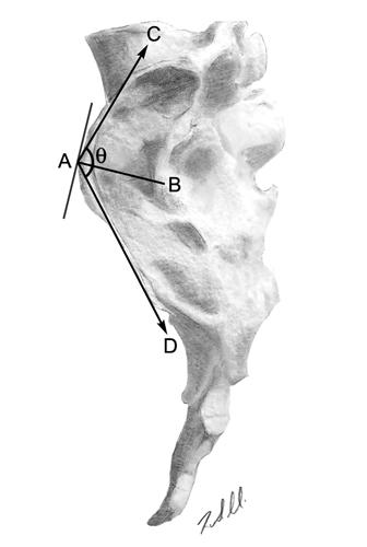 Auricular surface angles