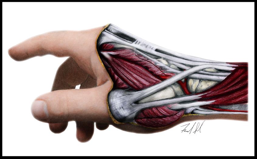 Wrist and Hand Pathologies
